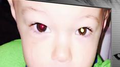 【健康】あなたのお子さんは大丈夫? 「眼球のがん」のチェック方法